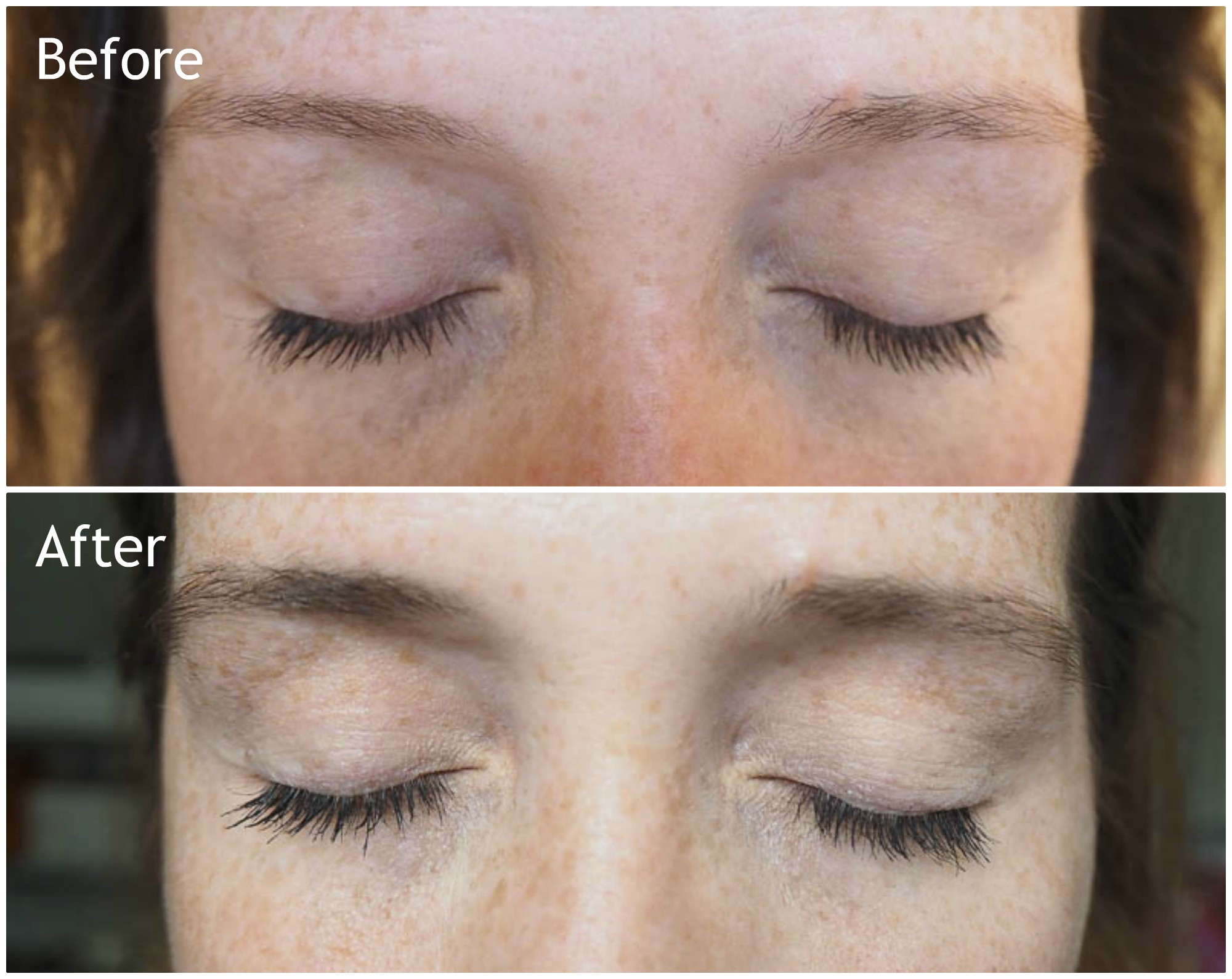 9dde4ea56b5 I think the most obvious difference in these are my eyebrows. They are much  darker and thicker after 60 days. I had noticed that I was having to pluck  them ...