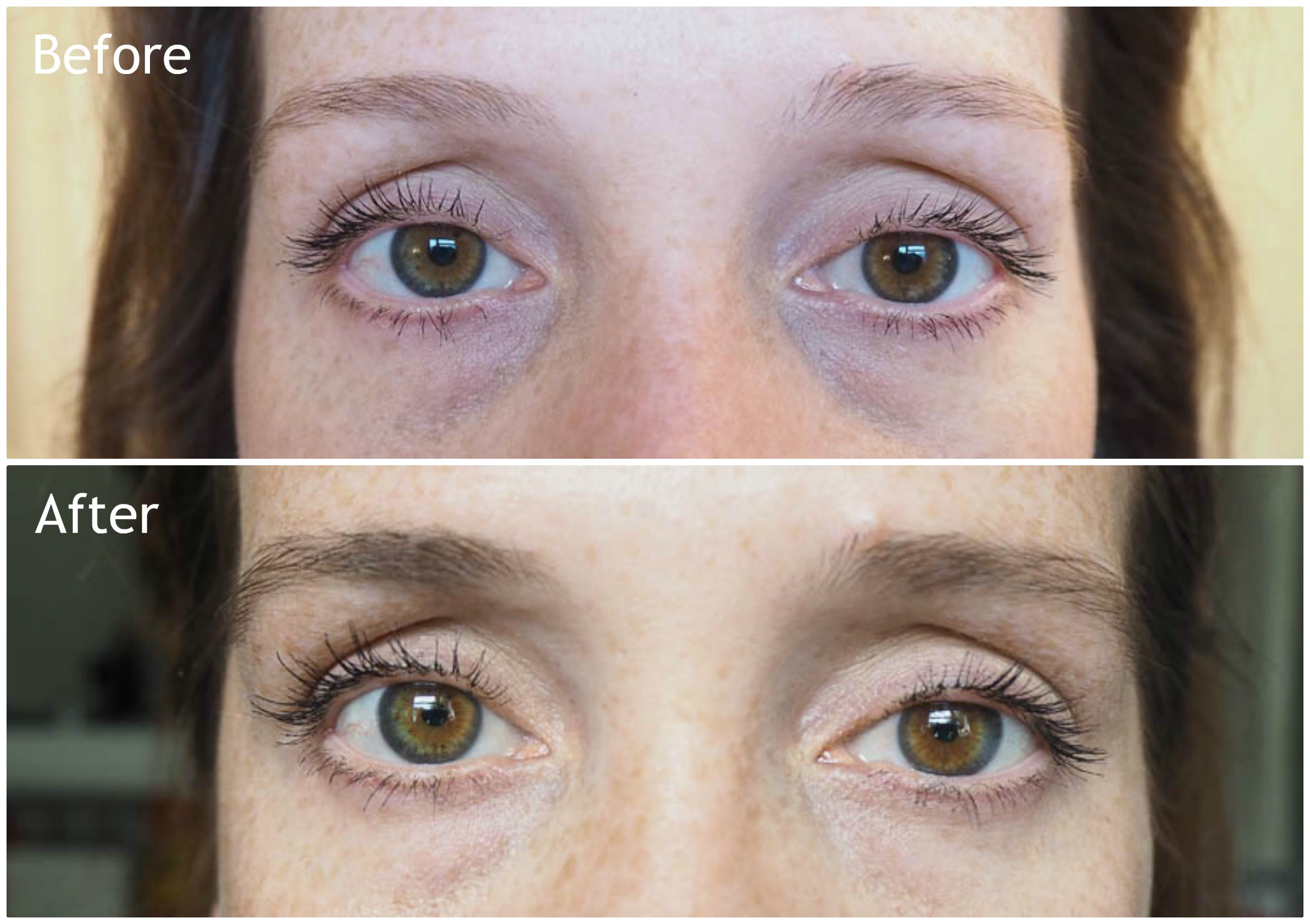 My Rapidlash And Rapidbrow Experience Before And After Melissa